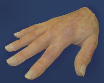 prothesis silicon ny Rehabilitation and prosthetic services menu menu rehabilitation and prosthetics ny bronx v03 526 prosthetic and orthotic 130 w kingsbridge road bronx.